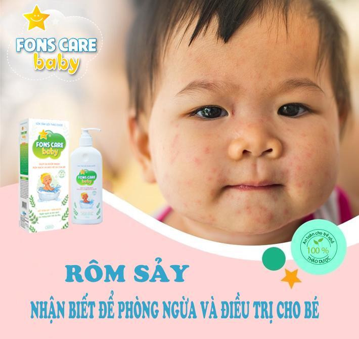 Sữa tắm gội Thảo dược Fons Care Baby phòng ngừa bệnh viêm da