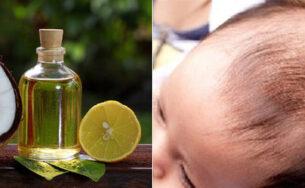 Bày mẹ 6 cách trị cứt trâu cho trẻ bằng mẹo dân gian