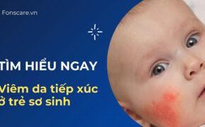 Mẹ đã hiểu rõ về viêm da tiếp xúc ở trẻ sơ sinh chưa?