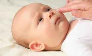 Top 5 kem dưỡng ẩm cho bé bị chàm tốt nhất hiện nay