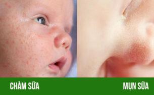 [Mách mẹ] cách phân biệt chàm sữa và mụn sữa ở trẻ